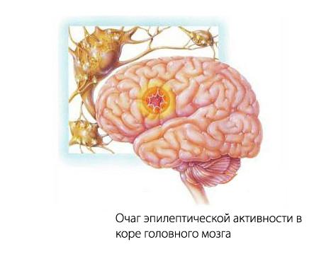 Как навсегда вылечиться от эпилепсии навсегда