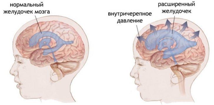 Умеренный гипертензионный синдром